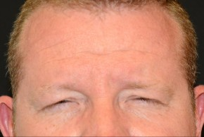 Before Photo - Botulinum Toxin - Case #16508 - 40 year old man treated with Botulinum Toxin - Frontal View