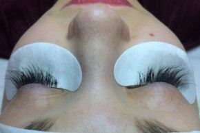 After Photo - Eyelash Enhancement - Case #16509 - 26 year old woman treated with eyelash enhancement - Frontal View