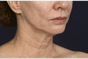 Before Photo - Neck Lift - Case #16510 - 50 year old woman treated with lower facial rejuvenation - Oblique View