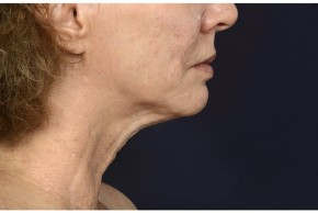 Before Photo - Neck Lift - Case #16510 - 50 year old woman treated with lower facial rejuvenation - Lateral View