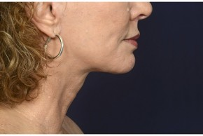 After Photo - Neck Lift - Case #16510 - 50 year old woman treated with lower facial rejuvenation - Lateral View