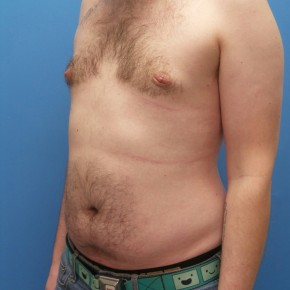 After Photo - Gynecomastia - Case #16561 - Oblique View