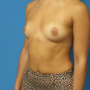 Before Photo - Breast Augmentation - Case #16564 - Submuscular Breast Augmentation 435cc Silicone Gel Implants - Oblique View