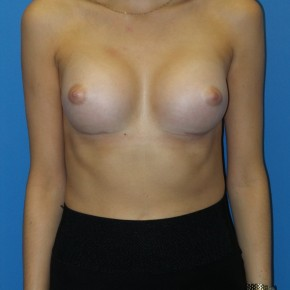 After Photo - Breast Augmentation - Case #16573 - Submuscular Breast Augmentation 295cc High Cohesive Silicone Gel Implants - Frontal View