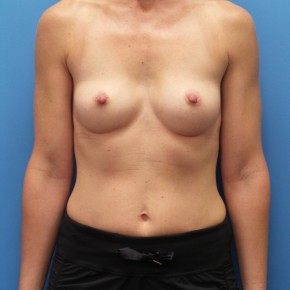 Before Photo - Breast Augmentation - Case #16574 - Submuscular Breast Augmentation Right Side: 330cc, Left Side: 295cc Moderate Plus Projection Silicone Gel Implants - Frontal View