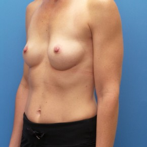 Before Photo - Breast Augmentation - Case #16574 - Submuscular Breast Augmentation Right Side: 330cc, Left Side: 295cc Moderate Plus Projection Silicone Gel Implants - Oblique View
