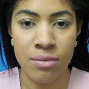Before Photo - Nose Surgery - Case #16580 - Rhinoplasty - 3 months post-op - Frontal View