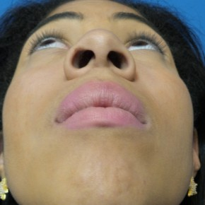 Before Photo - Nose Surgery - Case #16580 - Rhinoplasty - 3 months post-op - Worm's Eye View