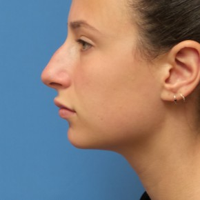 Before Photo - Nose Surgery - Case #16582 - Rhinoplasty - 3 months post-op - Lateral View