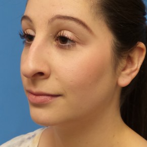 Before Photo - Nose Surgery - Case #16583 - Rhinoplasty - Oblique View