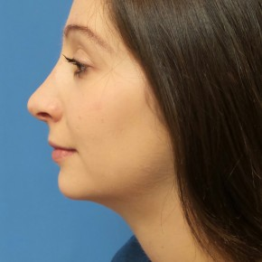 After Photo - Nose Surgery - Case #16583 - Rhinoplasty - Lateral View