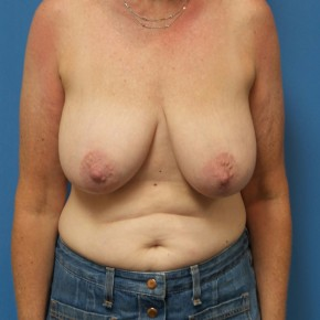 Before Photo - Breast Reduction - Case #16660 - Bilateral Breast Reduction - Frontal View