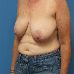 Before Photo - Breast Reduction - Case #16660 - Bilateral Breast Reduction - Oblique View