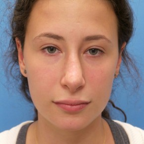 After Photo - Nose Surgery - Case #16582 - Rhinoplasty - 3 months post-op - Frontal View