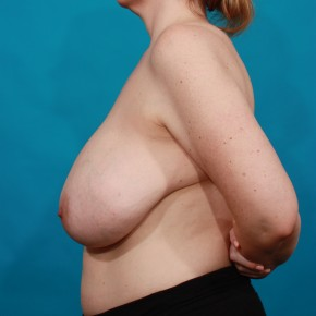 Before Photo - Breast Reduction - Case #16665 - Lateral View