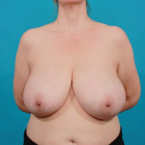 Before Photo - Breast Reduction - Case #16665 - Frontal View