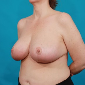 After Photo - Breast Reduction - Case #16665 - Oblique View