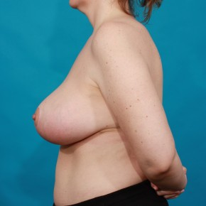 After Photo - Breast Reduction - Case #16665 - Lateral View