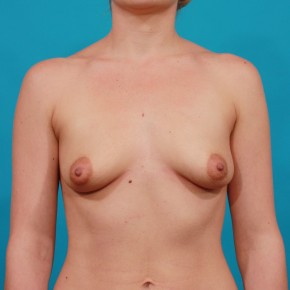 Before Photo - Breast Augmentation - Case #16667 - Silicone Breast Augmentation - Frontal View