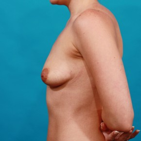 Before Photo - Breast Augmentation - Case #16667 - Silicone Breast Augmentation - Lateral View