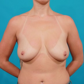 Before Photo - Breast Lift - Case #16668 - Mastopexy - Frontal View