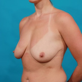Before Photo - Breast Lift - Case #16668 - Mastopexy - Oblique View
