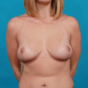 After Photo - Breast Lift - Case #16668 - Mastopexy - Frontal View
