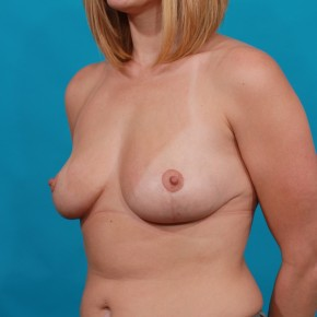 After Photo - Breast Lift - Case #16668 - Mastopexy - Oblique View