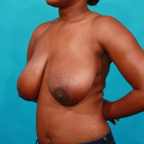 Before Photo - Breast Lift - Case #16671 - Mastopexy - Oblique View