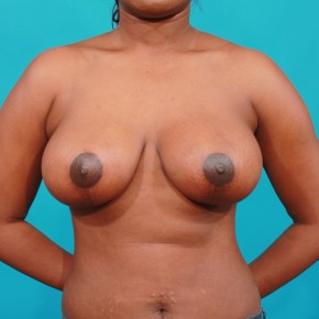 After Photo - Breast Lift - Case #16671 - Mastopexy - Frontal View
