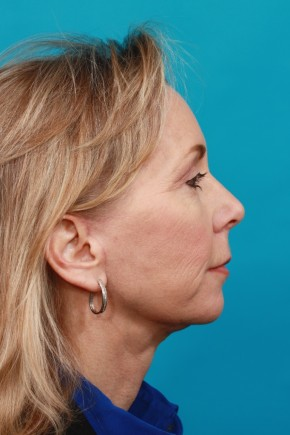 After Photo - Neck Lift - Case #16672 - Lateral View