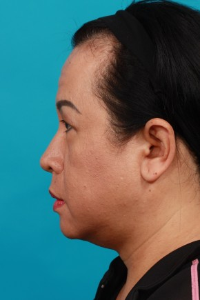 Before Photo - Eyelid Surgery - Case #16673 - Upper & Lower - Lateral View