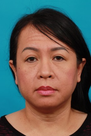 After Photo - Eyelid Surgery - Case #16673 - Upper & Lower - Frontal View