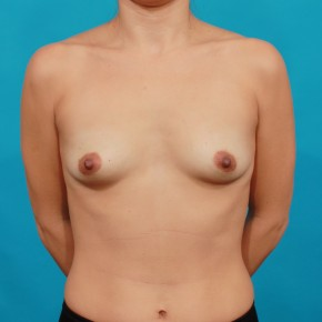 Before Photo - Breast Augmentation - Case #16675 - Ideal Implants - Frontal View