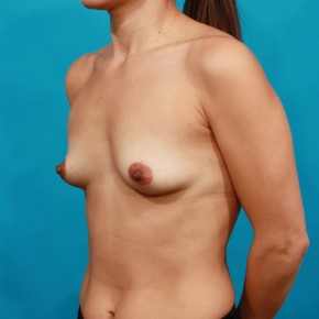 Before Photo - Breast Augmentation - Case #16675 - Ideal Implants - Oblique View