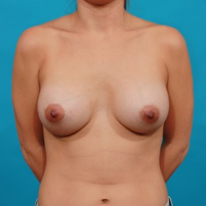After Photo - Breast Augmentation - Case #16675 - Ideal Implants - Frontal View