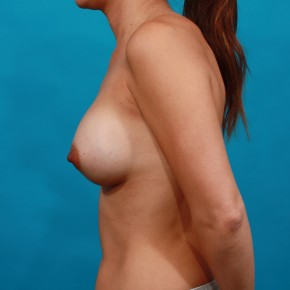 After Photo - Breast Augmentation - Case #16675 - Ideal Implants - Lateral View