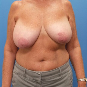 Before Photo - Breast Reduction - Case #16678 - Bilateral Breast Reduction - Frontal View