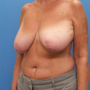 Before Photo - Breast Reduction - Case #16678 - Bilateral Breast Reduction - Oblique View