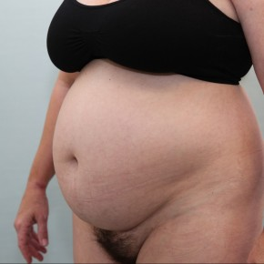 Before Photo - Tummy Tuck - Case #16683 - BAND Abdominoplasty - Oblique View