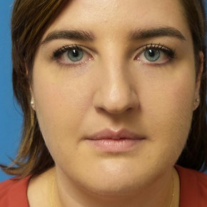 Before Photo - Nose Surgery - Case #16685 - Rhinoplasty  3 months post-op - Frontal View