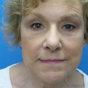 After Photo - Facelift - Case #16688 - Facelift/Upper & Lower Blepharoplasty/Laser Resurfacing to Full Face     5 months post-op - Frontal View