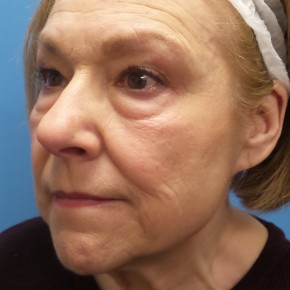Before Photo - Facelift - Case #16688 - Facelift/Upper & Lower Blepharoplasty/Laser Resurfacing to Full Face     5 months post-op - Oblique View
