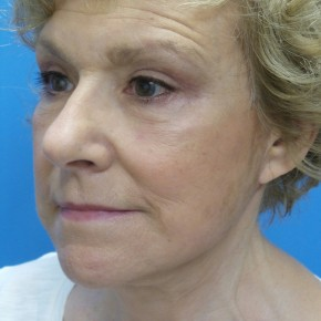 After Photo - Facelift - Case #16688 - Facelift/Upper & Lower Blepharoplasty/Laser Resurfacing to Full Face     5 months post-op - Oblique View