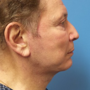 After Photo - Facelift - Case #16691 - Facelift/Chin Augmentation with Implant     7 months post-op - Lateral View