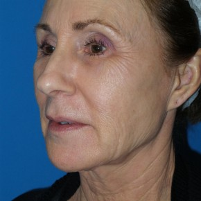 Before Photo - Facelift - Case #16800 - Facelift/Laser Resurfacing to Full Face     1 month post-op - Oblique View
