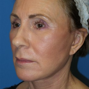 After Photo - Facelift - Case #16800 - Facelift/Laser Resurfacing to Full Face     1 month post-op - Oblique View