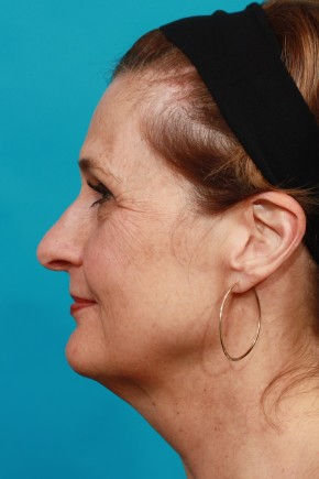 Before Photo - Facial Rejuvenation - Case #16816 - Full Facial Rejuvenation - Lateral View