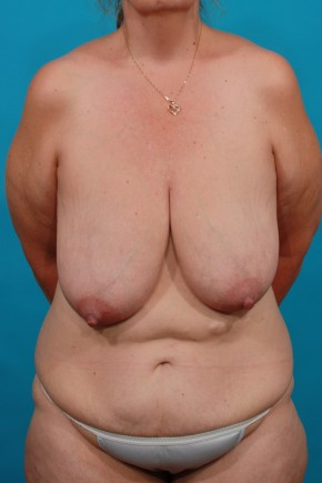 Before Photo - Plastic Surgery After Dramatic Weight Loss - Case #16817 - BL / TT - Frontal View