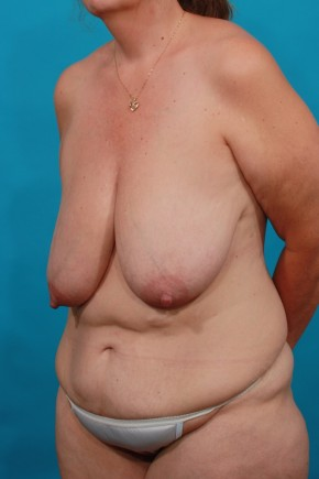 Before Photo - Plastic Surgery After Dramatic Weight Loss - Case #16817 - BL / TT - Oblique View